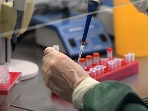 Роспотребнадзор создал высокоточный тест для определения коронавируса