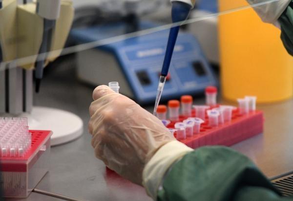 Роспотребнадзор создал высокоточный тест для определения коронавируса - фото 1